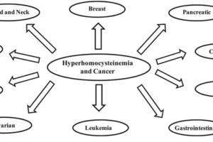 Hcy a rakovina